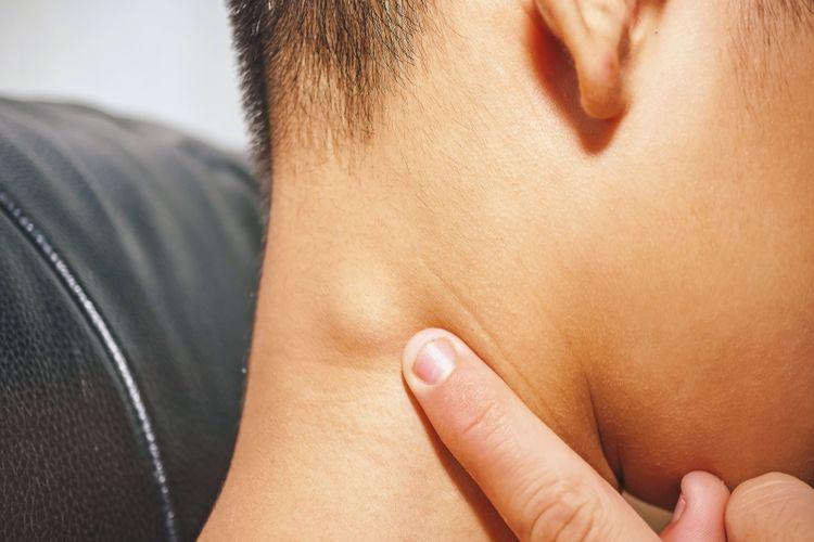 Ilustrasi gangguan pada kelenjar getah bening