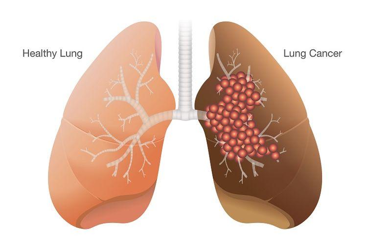 Ilustrasti kanker paru.