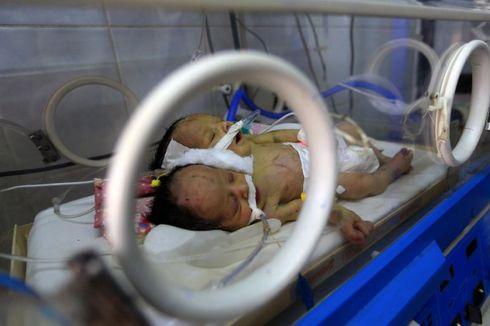 Peralatan Medis Kurang Memadai, Bayi Berkepala Dua di Yaman, Khaleq dan Rahim, Meninggal