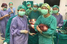 Mengeluh Sakit, Ternyata Ada Tumor Seberat 5 Kilogram di Perut Pria 52 Tahun