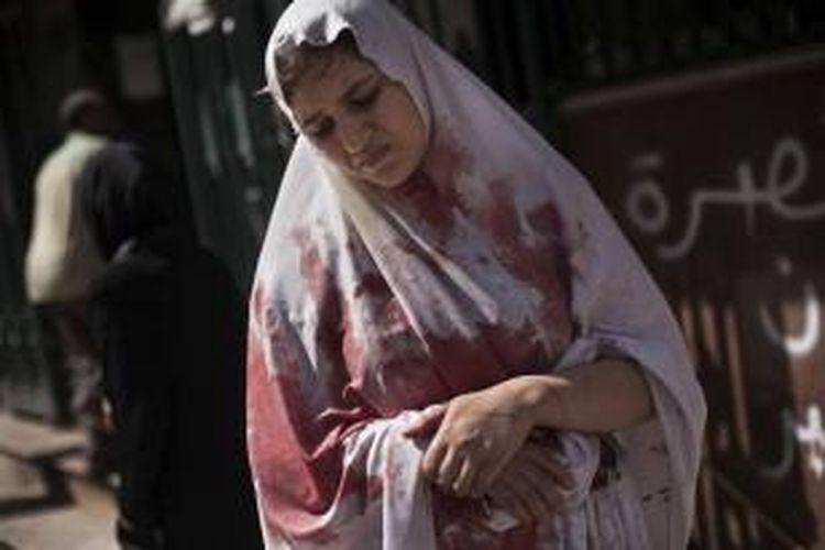 FILE - Seorang wanita terluka meninggalkan RS Dar El Shifa di Aleppo, Suriah, 20 September 2012. Puluhan warga sipil Suriah tewas, 4 di antaranya anak-anak dalam serangan artileri. Foto ini salah satu dari 20 foto karya fotografer AP yang memenangkan Pulitzer Prize 2013 kategori foto Breaking News.