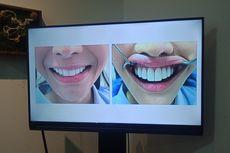 Awas, Jangan Pasang Veneer Gigi di Sembarang Klinik