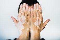 5 Penyebab Vitiligo, Penyakit Memudarnya Warna Kulit yang Baik Diantisipasi