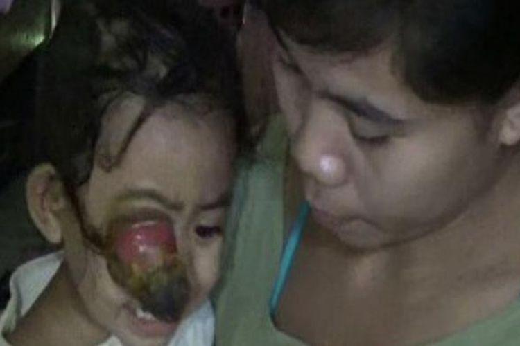 Zalzakia (2,5 tahun) bocah asal polewali mandar sulawesi barat ini mata kannya terus mebengkak hingga menyerupai jantung pisnag lantaran terserang tumor ganas sejak usia lima bulan. Sayangnya bocah ini tak bisa dioperai lantaran kedua orang tuanya tak mampu.