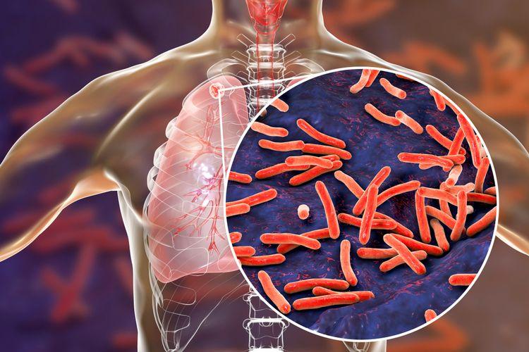 Ilustrasi penyakit Tuberculosis (TBC).