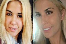 Wanita Ini Bedah Plastik Rp 840 Juta agar Mirip Anak Donald Trump