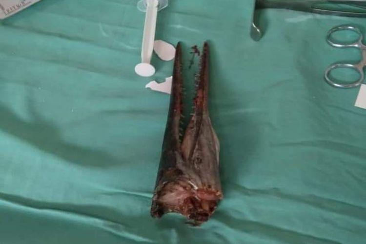 Moncong ikan sori alais marlin usai dikeluarkan melalui operasi dari leher remaja kelas 2 SMP Muhammad Idul di RSUP Dr. Wahidin Sudirohusodo Makassar, Senin (20/1/2020).