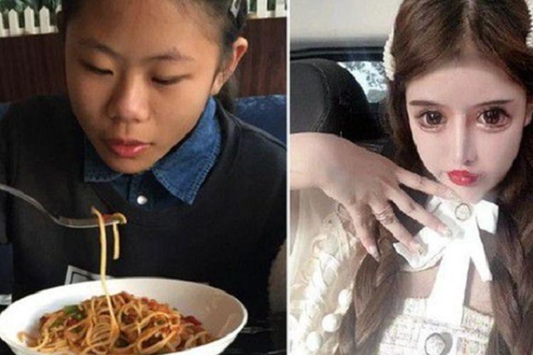 Zhou Chuna, seorang influencer di China menunjukkan foto sebelum (kiri) dan sesudah dia menjalani operasi plastik. Dalam tiga tahun terakhir, dia mengaku sudah menjalani 100 operasi plastik.(Screengrab from YouTube)