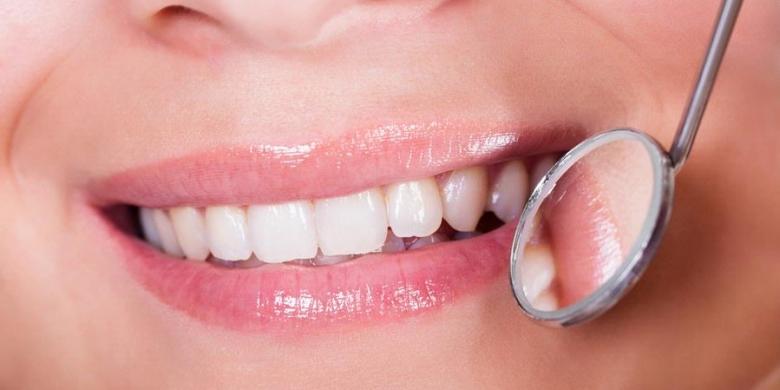 Kenali Perangkat Pemutih Gigi Di Rumah Kompas Com