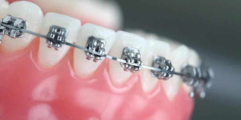 Kecewa dengan Pemasangan Kawat Gigi di Tukang Gigi - Kompas.com c8f8255cbe