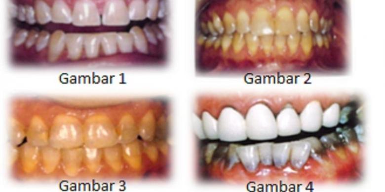 Gigi Kuning Akibat Antibiotik Kompas Com