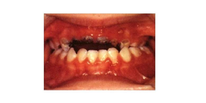 Colgate Profesional Karies botol pada anak yang rata gusi pada gigi depan  atas 028f2ef6d8