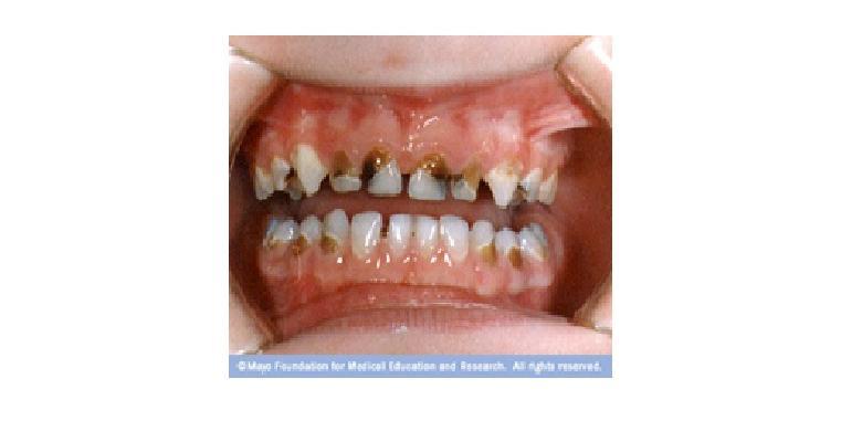 Colgate Profesional Pola awal karies botol pada usia 20 bulan diawali  dengan kerusakan melingkar di leher gigi depan atas berwarna putih atau  coklat gelap. e3e81071ca