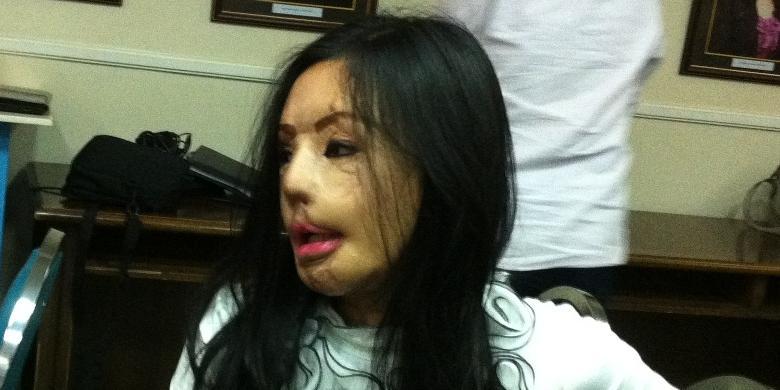 Lisa setelah 17 kali menjalani operasi transplantasi wajah atau face off.