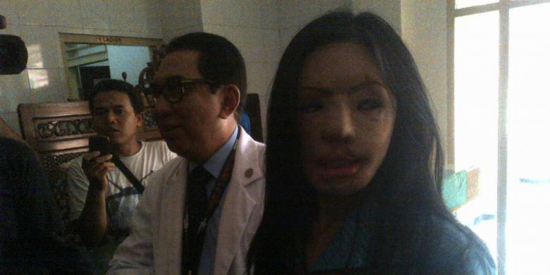 Lisa pasien face off RSUD dr Soetomo Surabaya.
