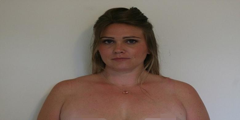 Operasi Plastik Gagal Puting Payudara Perempuan Ini Pun Lenyap