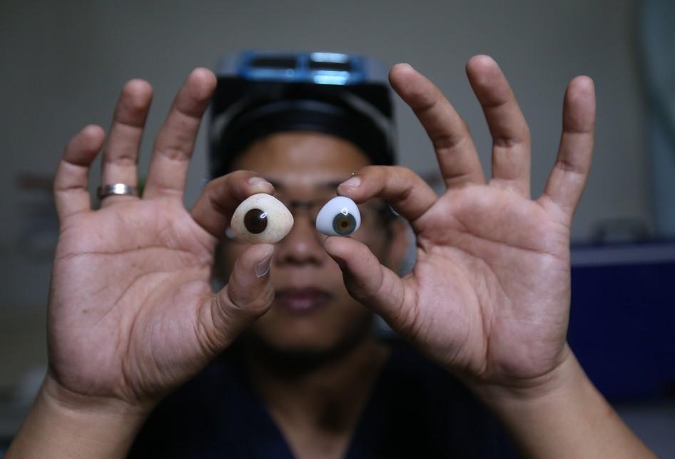 Pembuatan Mata Palsu di Tangerang Selatan